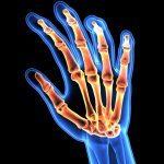 RA Rheumatoid Arthritis, a hand 3d xray