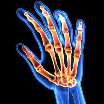 What Is Rheumatoid Arthritis And How RA Will Affect Your Life