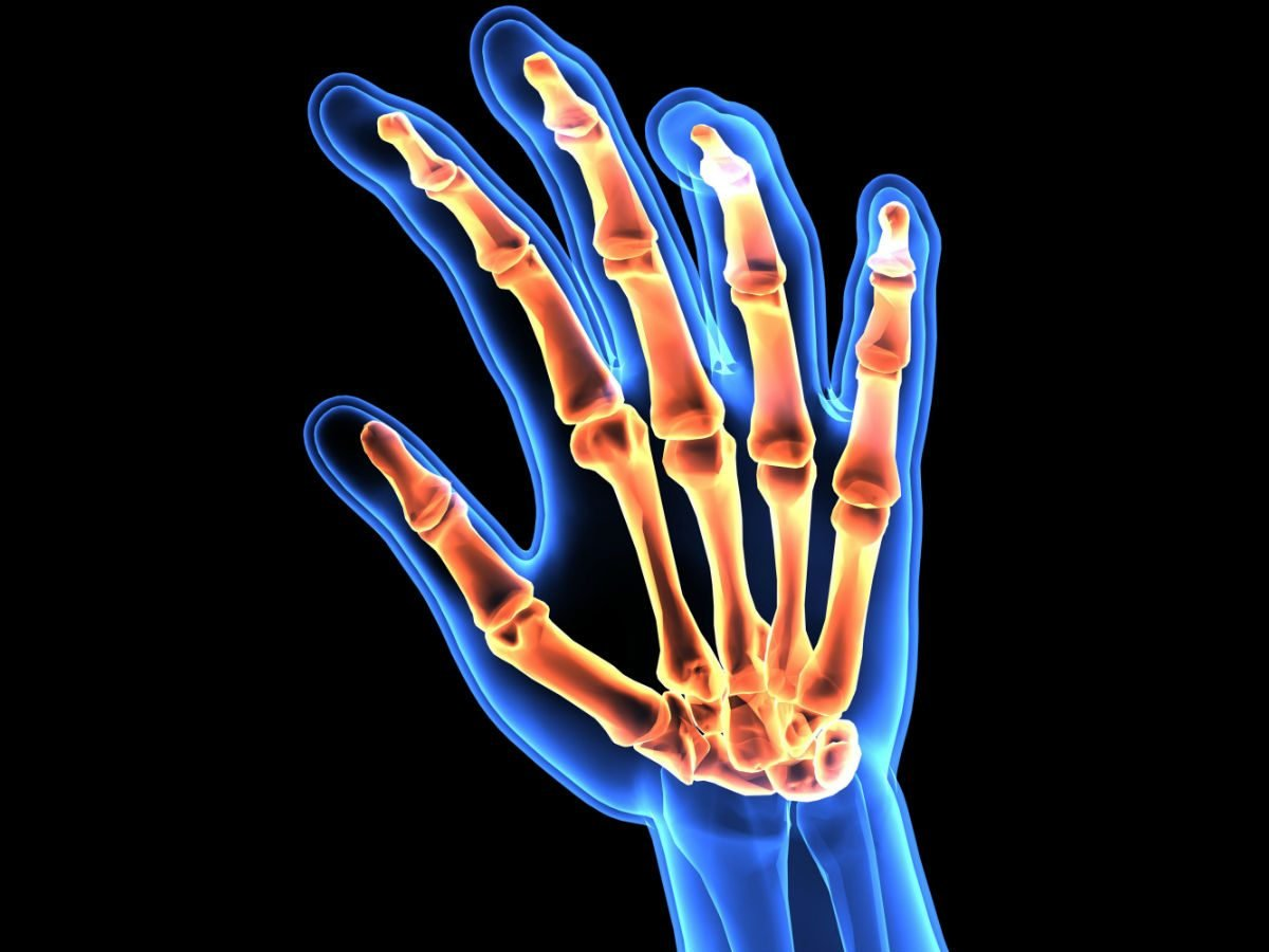 Ra What Is Rheumatoid Arthritis And How It Will Affect Your Life