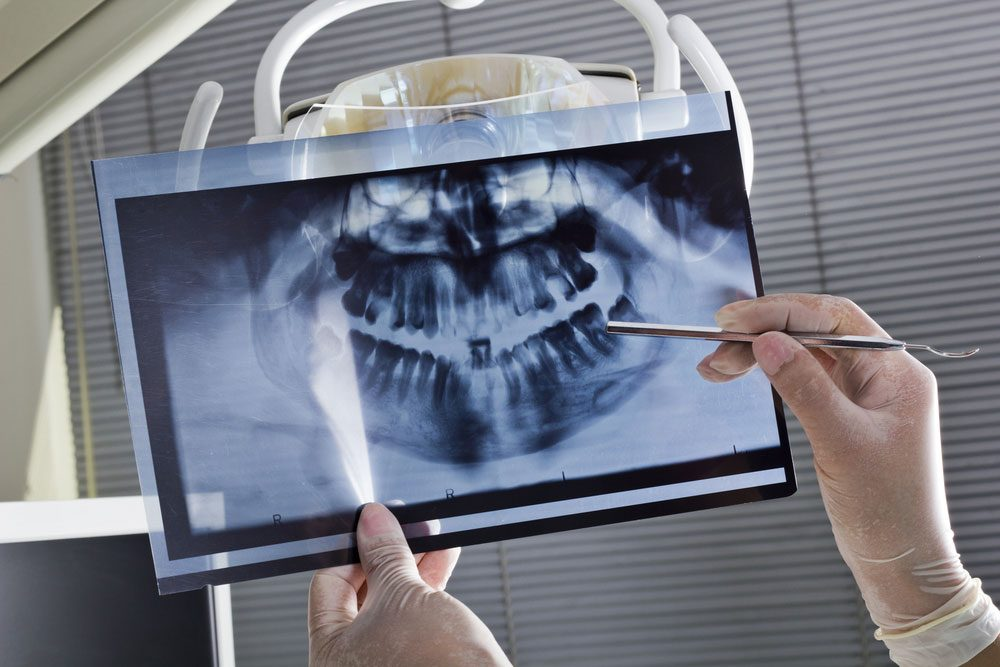 dental_symptoms