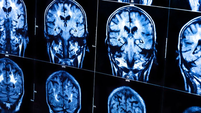 Food Cravings Meaning, brain