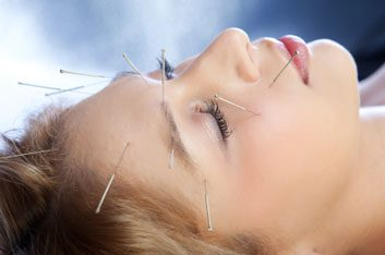 acupuncturepainrelief