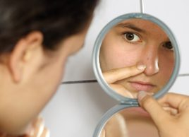 The truth about adult acne