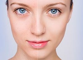 Natural home remedies: Acne