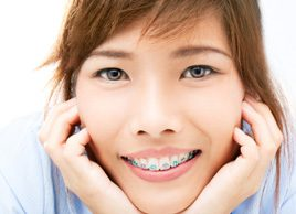 Are braces, crowns or veneers right for you?