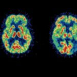 News: Alzheimer's detected years before symptoms