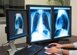 The five deadliest cancers for women: Lung cancer