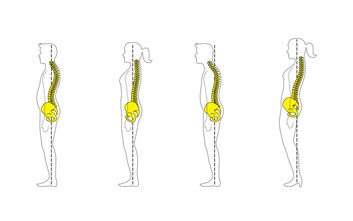 Does your posture look like this? How to stand up straight