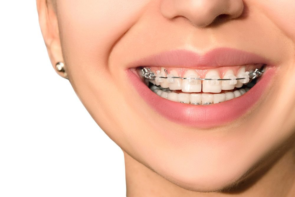 Adult teeth braces