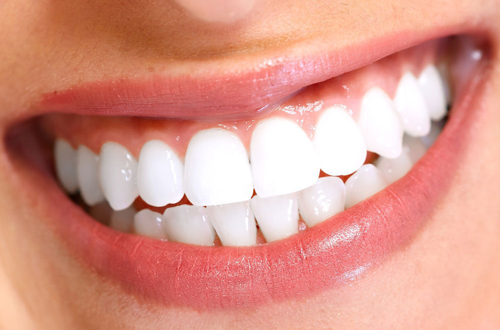 adult-orthodontics-straight-teeth