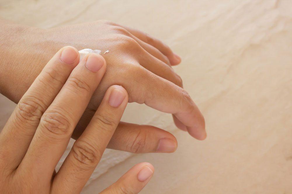 dehydrated dry skin