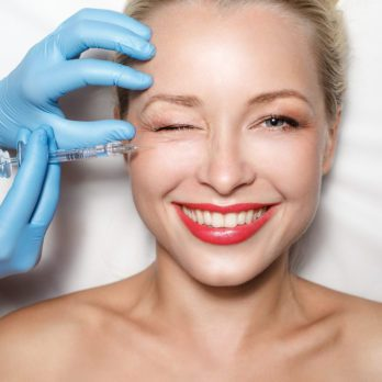 What's a Vampire Facelift!?