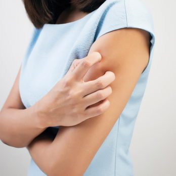 The Expert Fix For Your Eczema Flare-Ups
