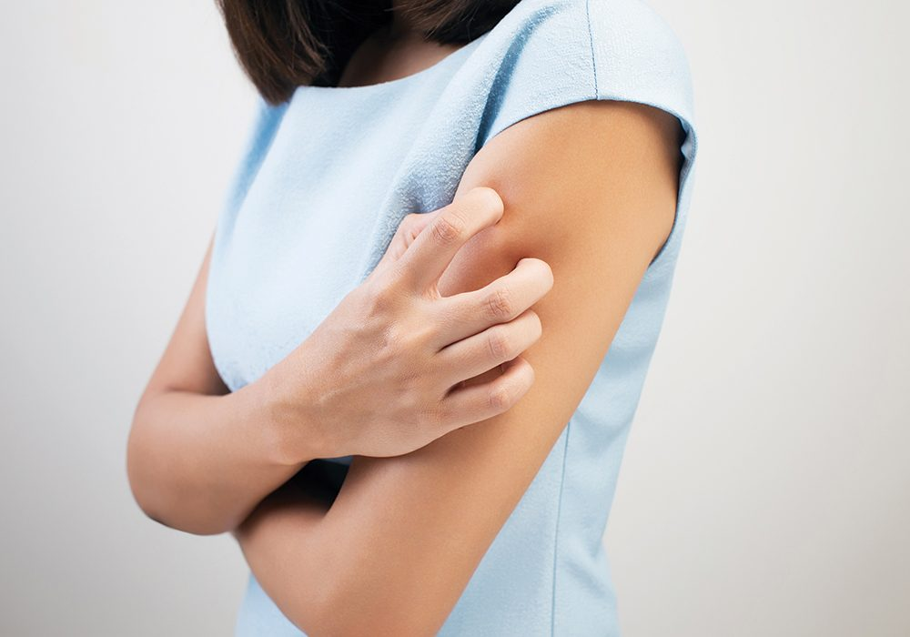 6261135d8fd90 How to Get Rid of Pesky Eczema Flare-Ups (Without Medication)