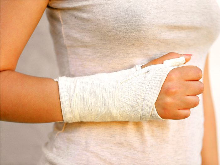 Breaking a bone in a seemingly minor accident is a sign you're not getting enough calcium