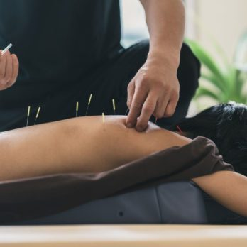 5 Ways Acupuncture Can Help Improve Your Fitness