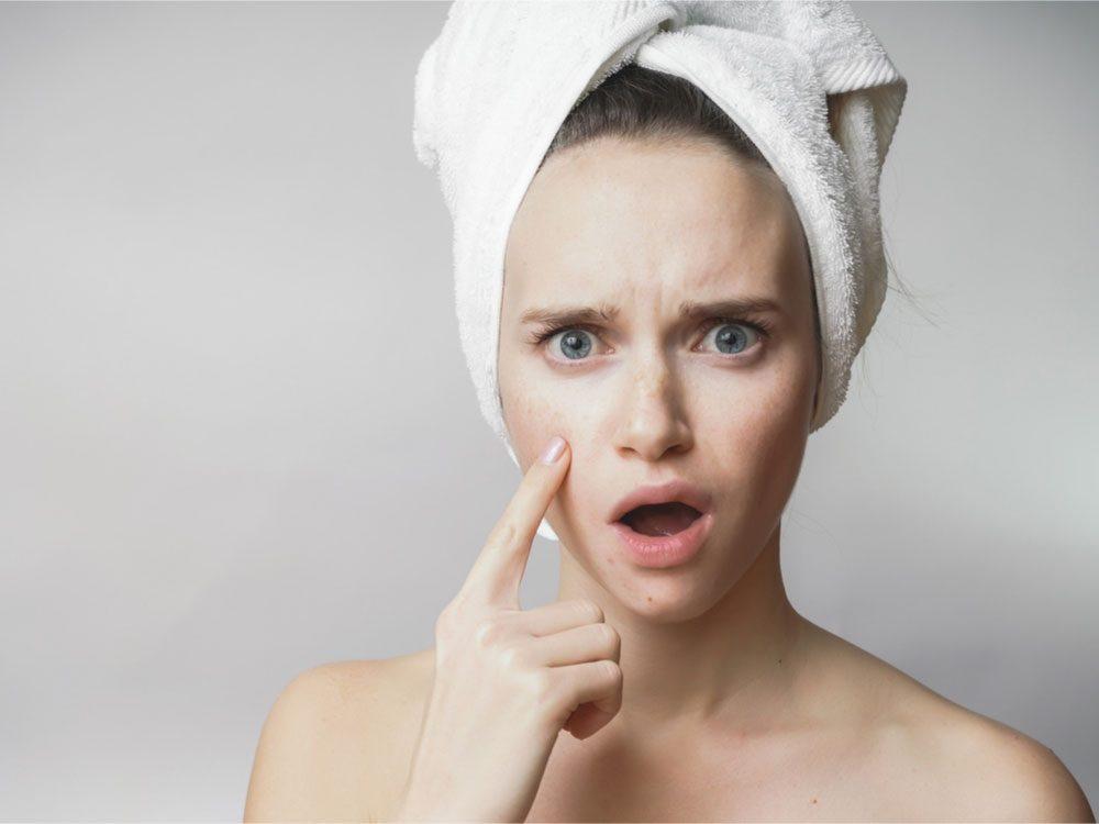 Turmeric Benefits for Skin Acne