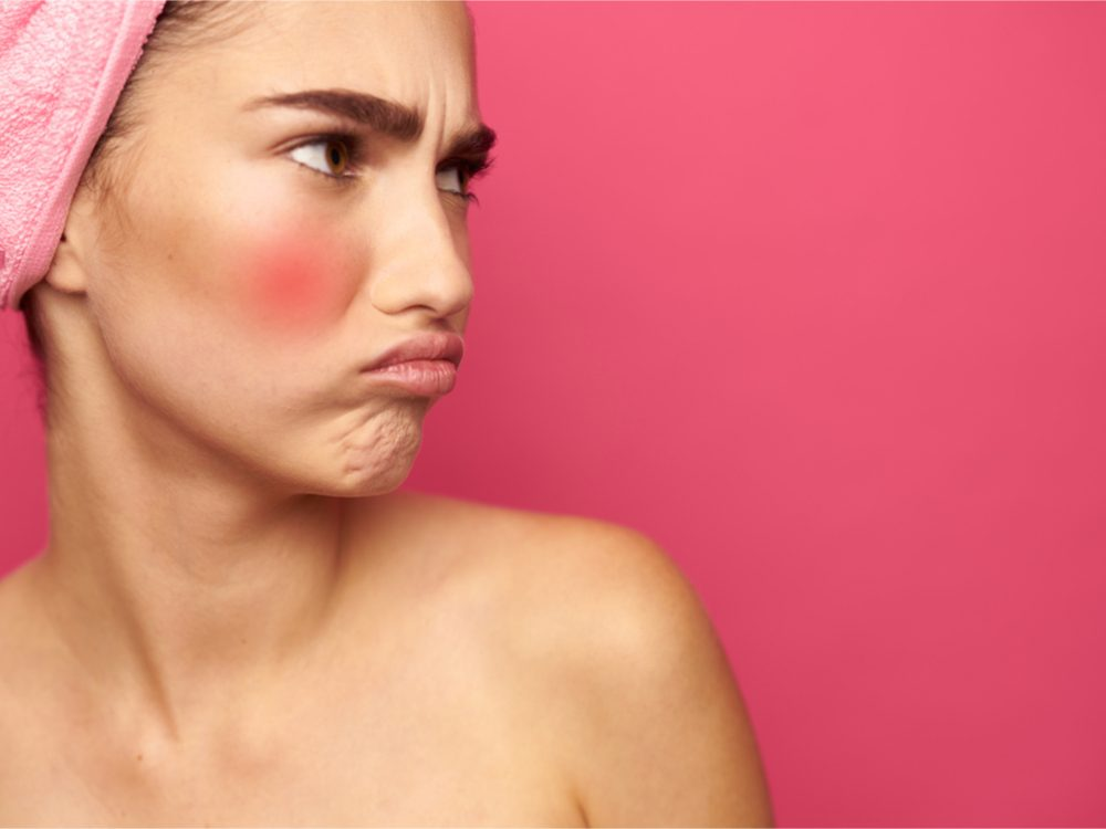 products for redness, woman with red cheeks