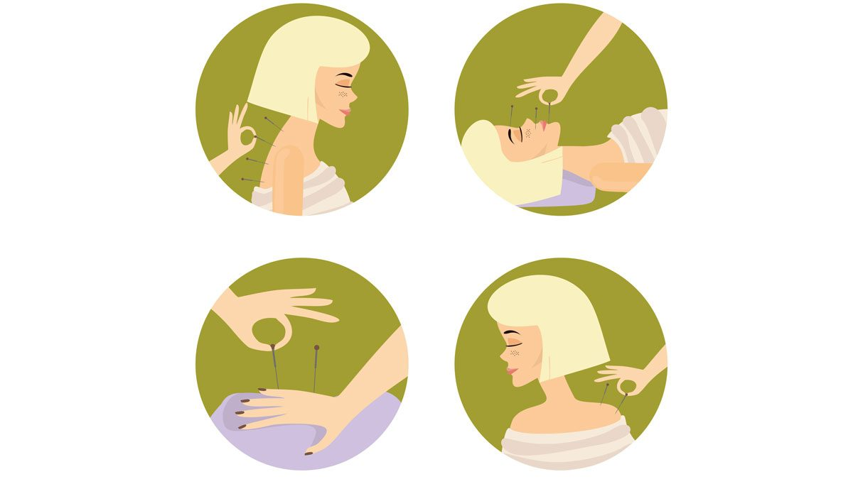 different types of acupuncture