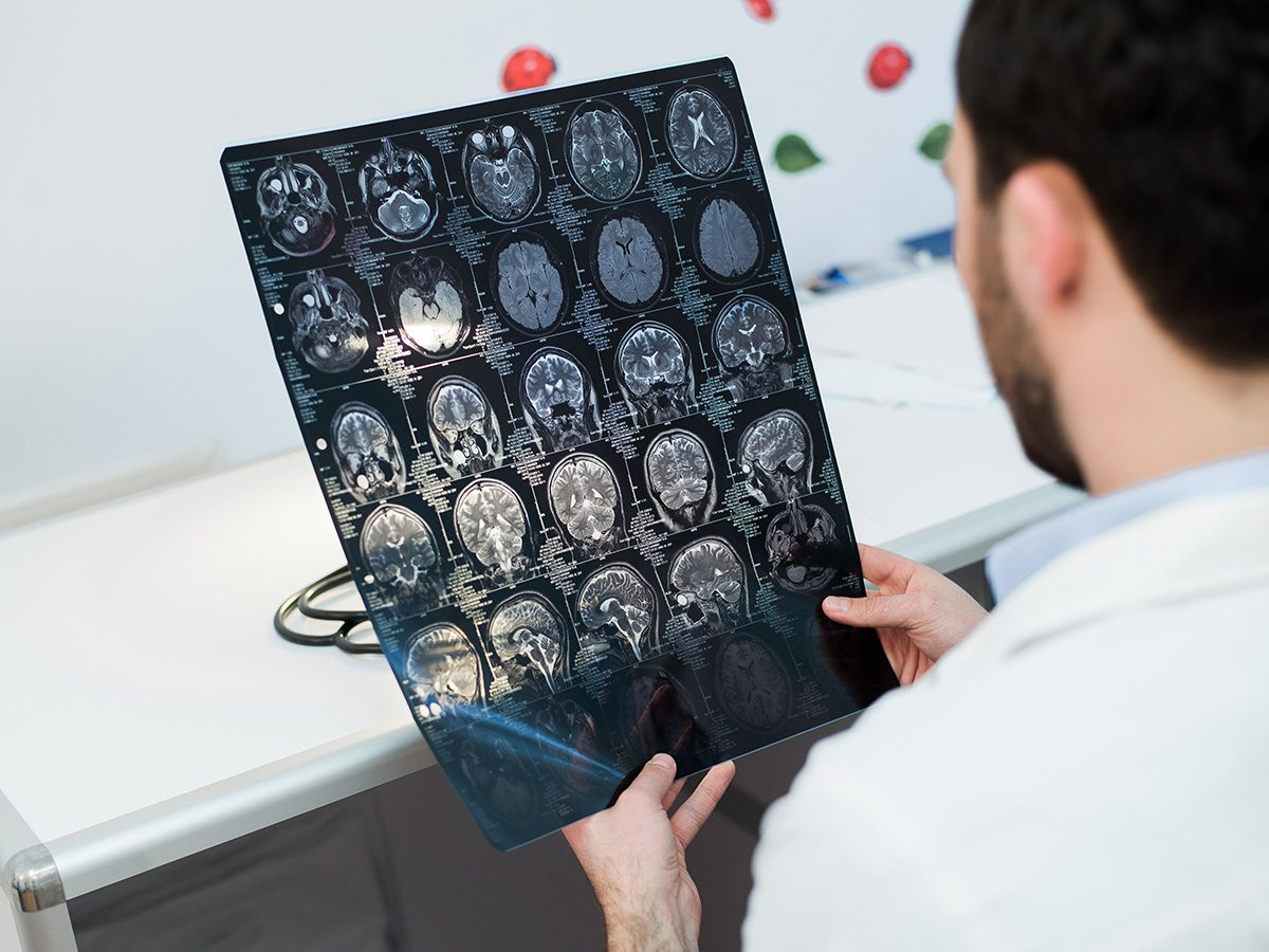 Health myth, a doctor checks brain scans
