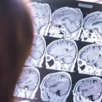 This One Surprising Habit Could Put Your Brain at Risk of Dementia