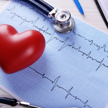 How a Cardiologist Suggests You Manage Your Heart Attack Risk
