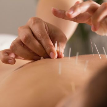 5 Health Conditions That Could Benefit From Acupuncture