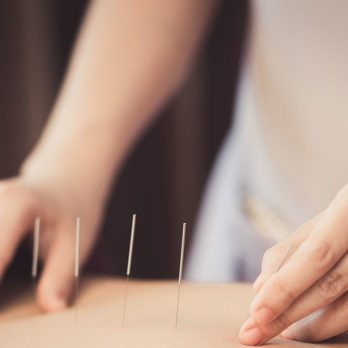 Could Acupuncture Be the Answer For Relieving Your Back Pain?