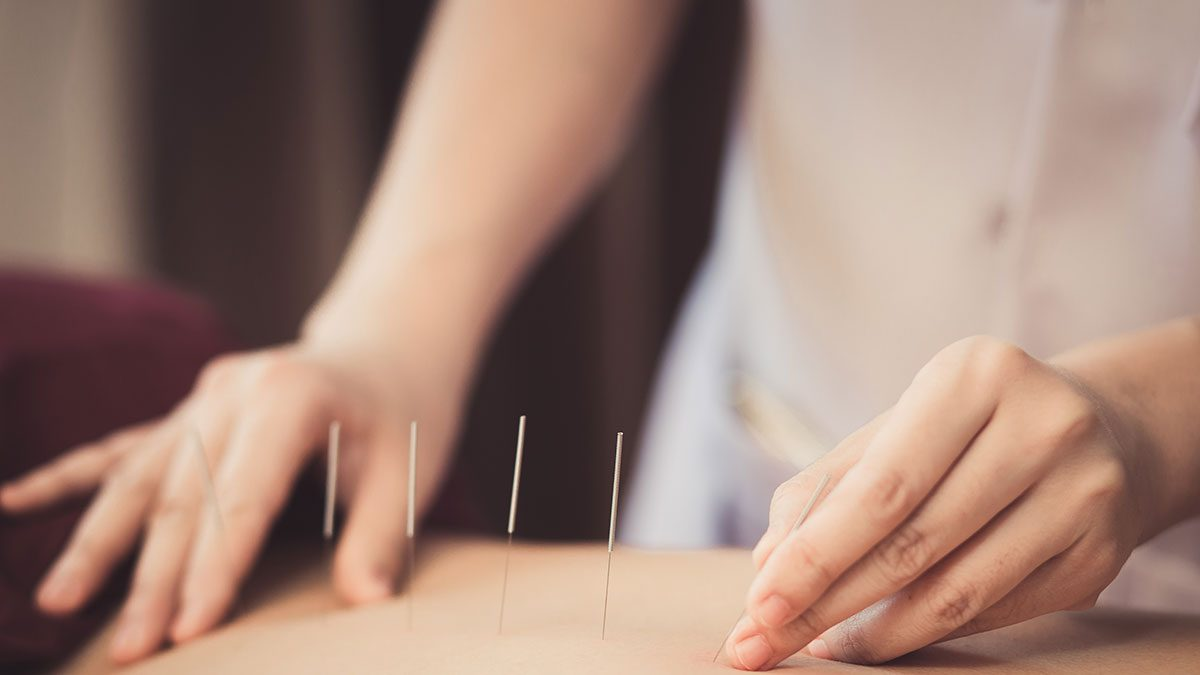 Acupuncture, needles in woman's back