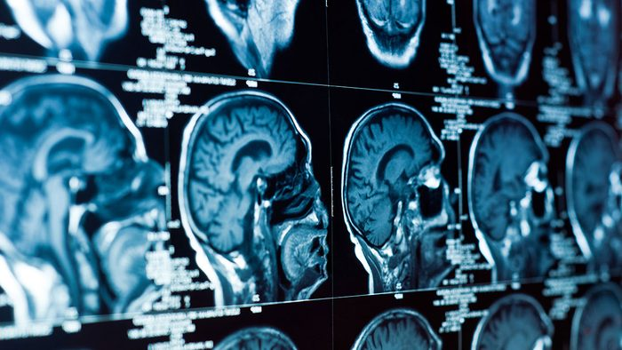 Benefits of Magnesium, brain