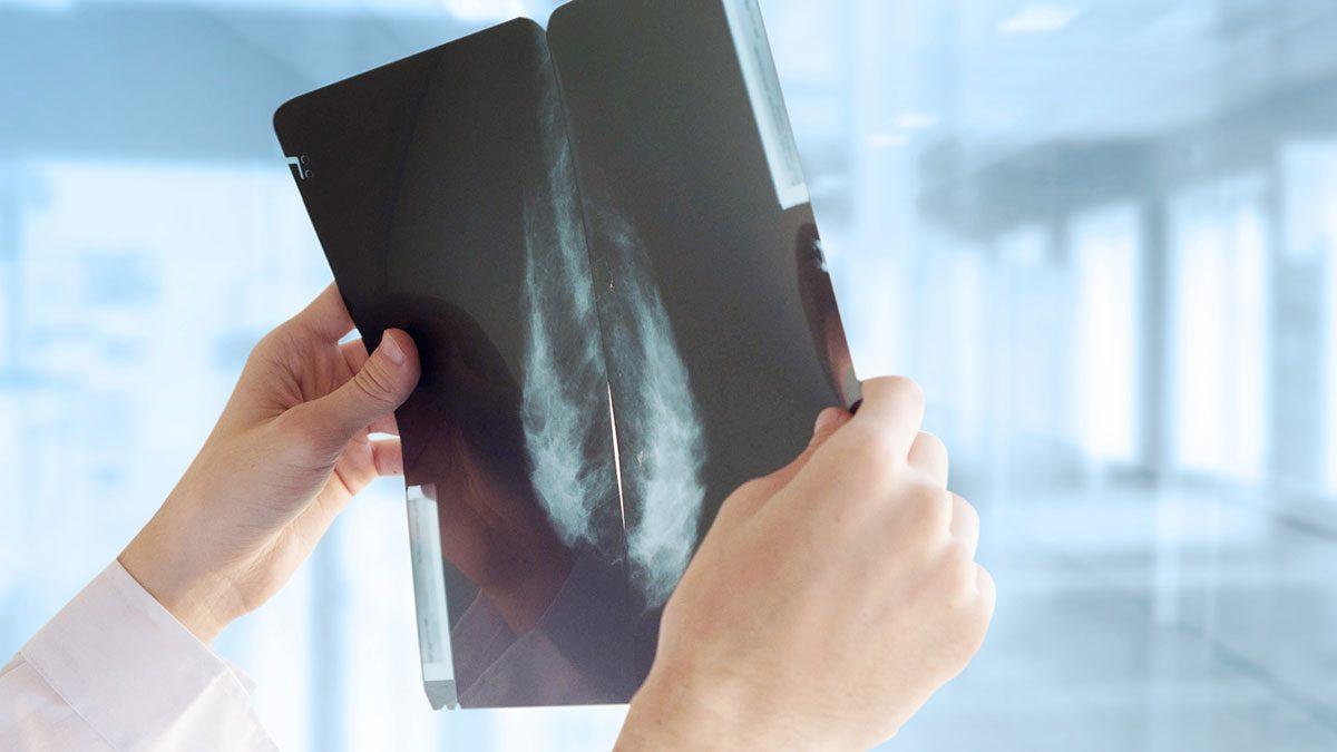 Breast Cancer Advancements, mammogram