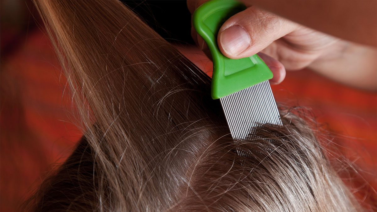 Itchy scalp, lice