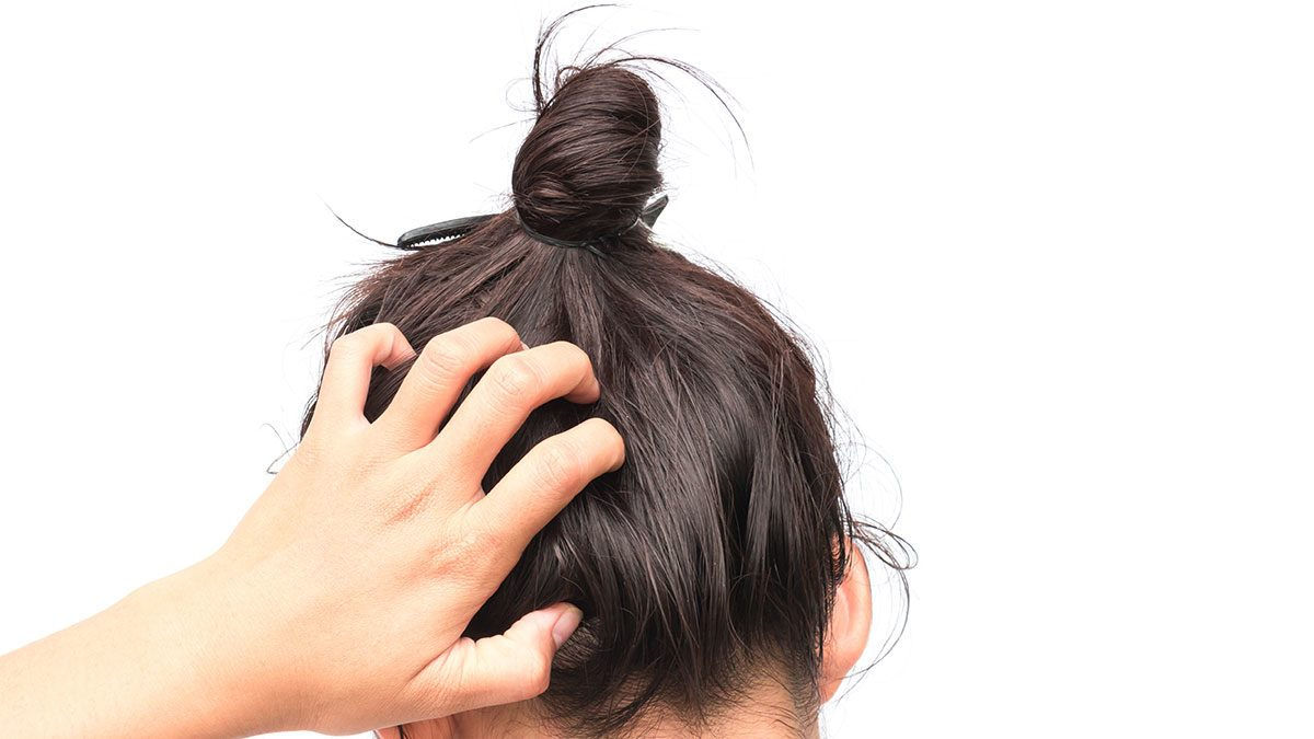 21 Reasons for Your Itchy Scalp | Best Health Magazine