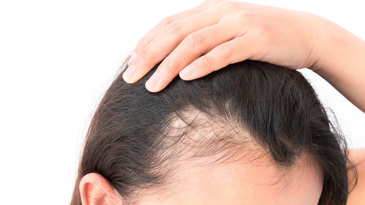 Itchy Scalp, hair loss