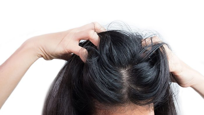 skin says about your health | scalp