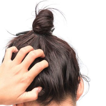 21 Reasons Why Your Scalp Might Be Itchy
