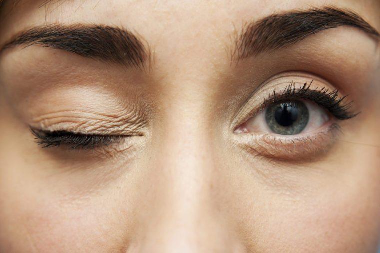 rubbing eyes, eyelid, eye health