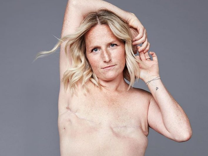 Why One Woman Said 'No' to Reconstruction After a Double Mastectomy