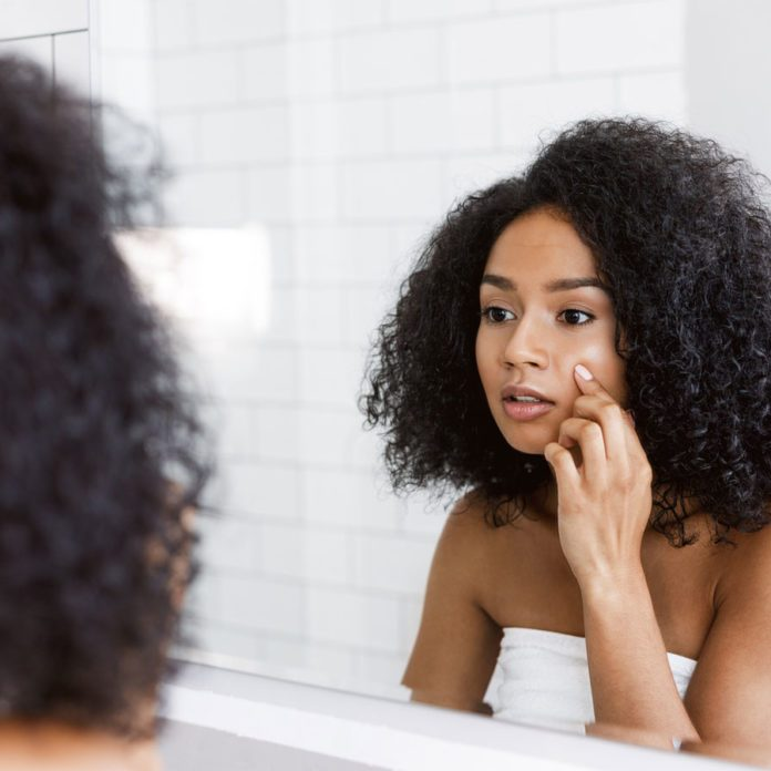 Here's When You Can Expect Your Hormonal Acne to Finally Go Away