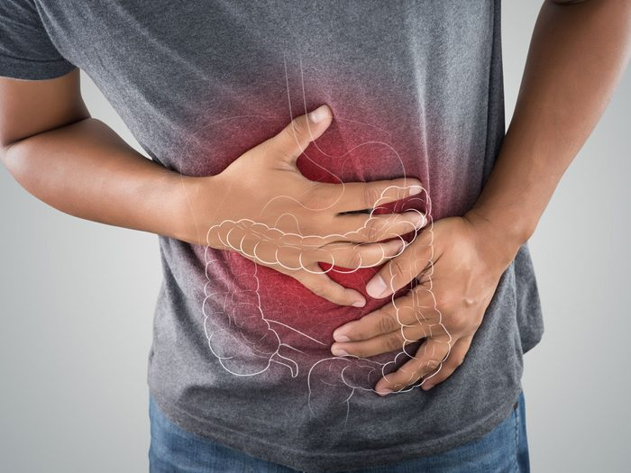 colon cancer and link to gut bacteria