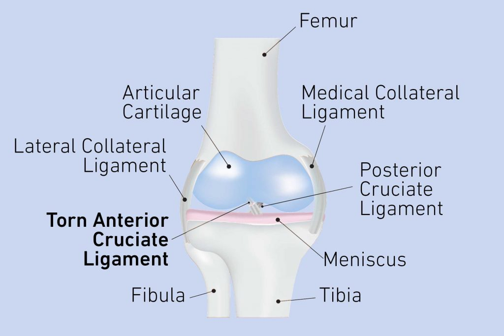 torn ACL