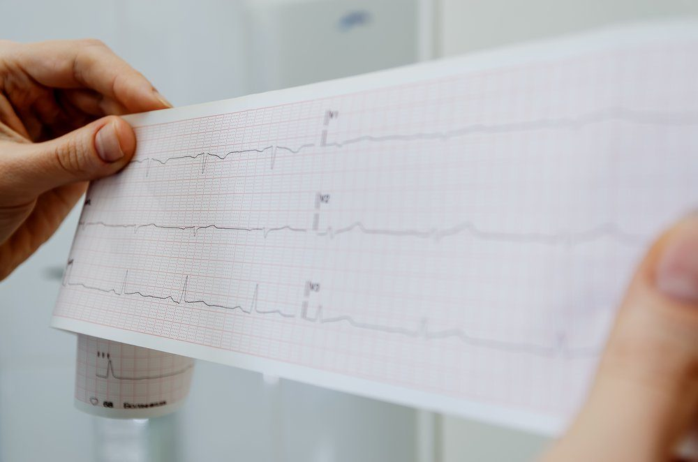 heart health evaluation EKG diagnosis graph test electrocardiogram report at a health care provider facility