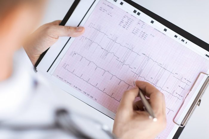 bright picture of male doctor hands with cardiogram