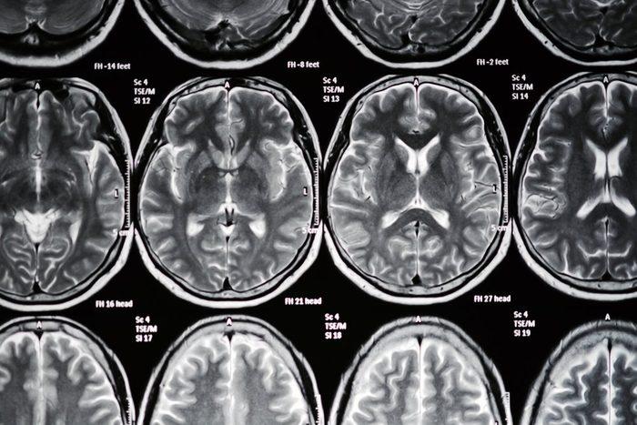 Scan film MRI.