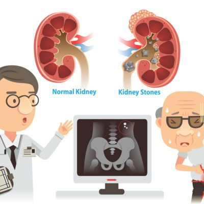 passing a kidney stone pain inflammation