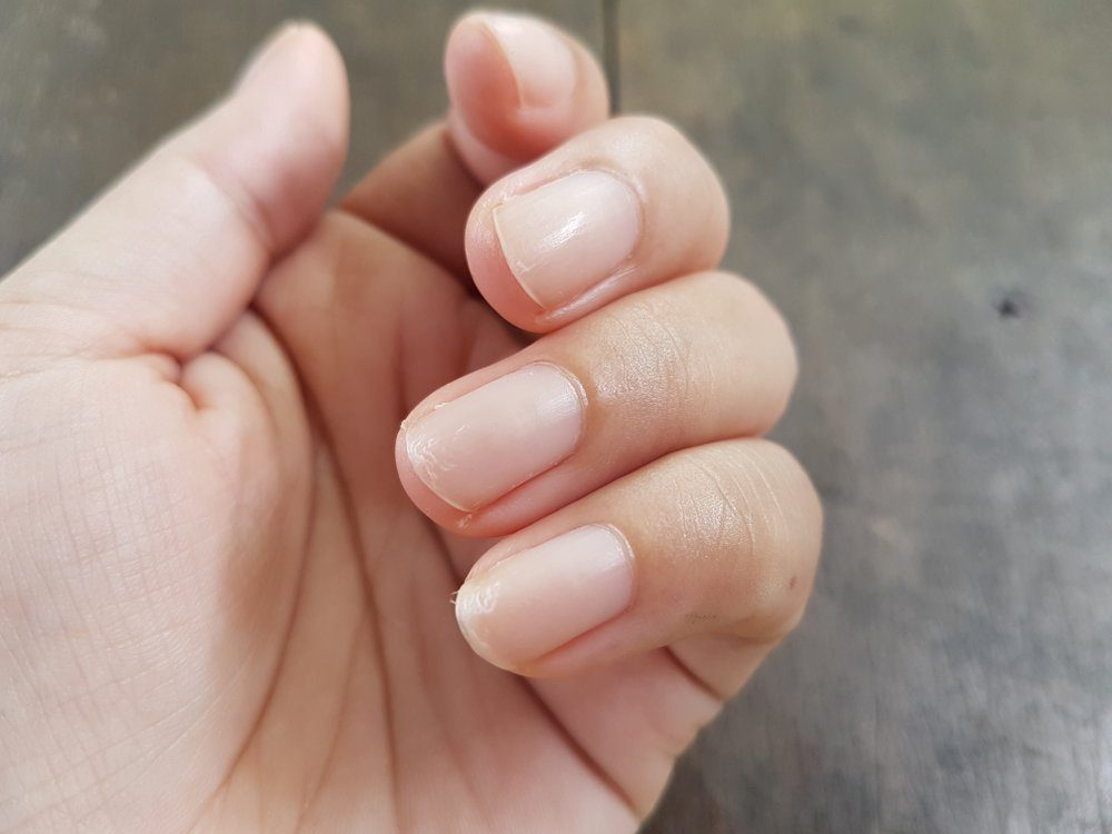 things that wreck your teeth | Close up of nails that have problem by peeling after doing manicure. Health and beauty problem.