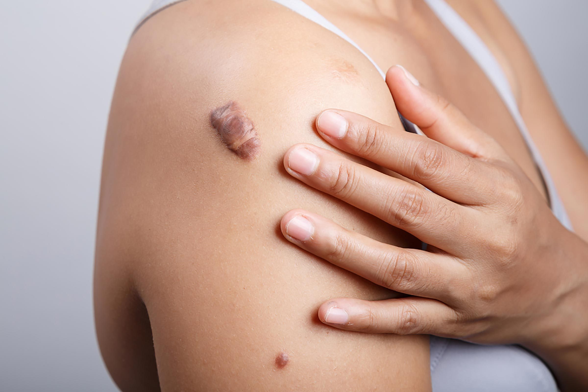 how to get rid of scars
