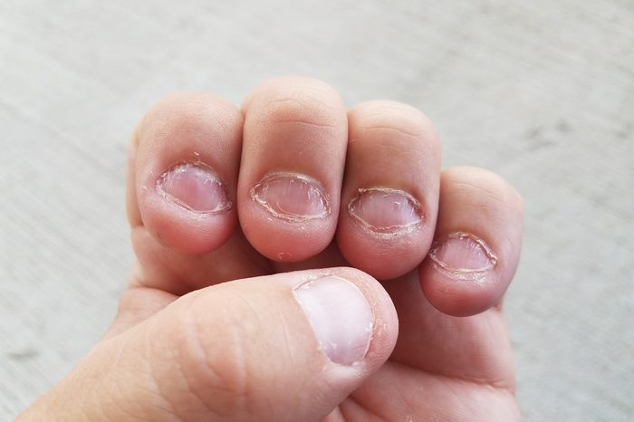 disgusting bitten fingernails on man's hand