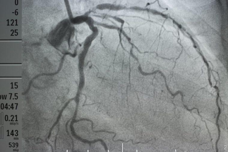 coronary artery angiography ,Coronary artery disease , left coronary angiography