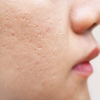 The Best Acne Scar Treatment for Even the Toughest Scars
